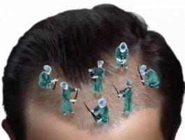 哪些人不适合植发呢?怎样才说明植发成功了没有失败呢?