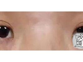 成都割个双眼皮1W值吗?这几种双眼皮你选好了吗?