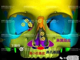 鼻基底科普上篇——异物感、移位是手术失败?