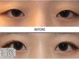 关于双眼皮面诊,八成人都不知道这些……