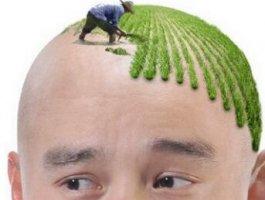 宁波雍禾植发医院靠谱吗 头发种植效果好吗