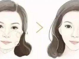 专业医师带你了解玻尿酸瘦脸的奇效!