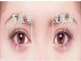 开眼角的好处是什么呢 开眼角需要注意什么呢