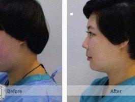 专家带你了解自体软骨隆鼻手术整形
