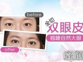 在上海做了切开双眼皮术后效果分享!