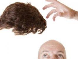 脱发有哪些日常治疗方法你知道吗?