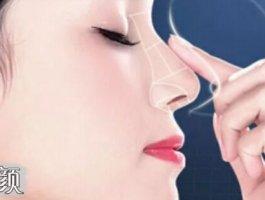 鼻尖整容术让你拥有完美鼻形!