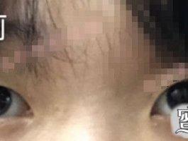 埋线双眼皮案例:埋线双眼皮对求美者的眼部都有哪些要求?