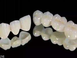 烤瓷牙有什么危害 做烤瓷牙的危害