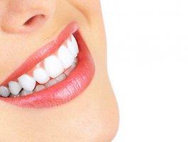 冷光美白牙齿术前准备有哪些 术后注意事项是什么