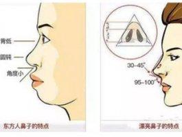 鼻基底填充科普 | 填充鼻基底人中会变长,鼻孔会变大?