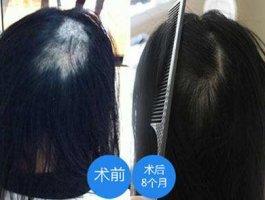 疤痕植发多久能长出头发?