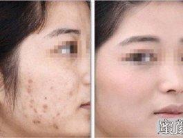 最简单高效的祛疤方法:疤痕整形