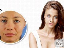 botox除皱后脸部会变僵硬吗?
