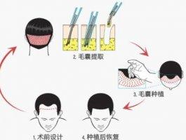 如何选择一家好的植发医院呢?