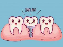 种牙两千多靠谱吗?牙博士种植牙好吗?拔牙后不种会怎样