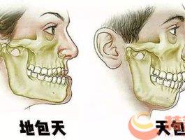 正颌手术的效果怎样?正颌手术的费用是多少?