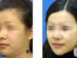 我在北京花五万做面部吸脂效果告诉你会不会反弹