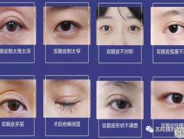 双眼皮修复如何才能获得 满意双眼皮