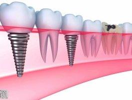 你做的种植牙能用4年还是40年,取决于这个~~