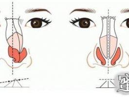 假体隆鼻失败怎么办?要知道这些修复方法!
