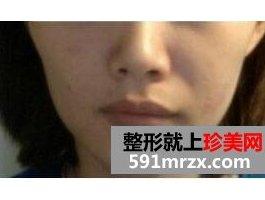 郑州丽天整形医院做了面部填充 达到旺夫相的标准