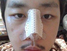 上海九院假体隆鼻价格 恢复效果图