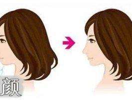 玻尿酸隆下巴让你拥有更加立体的脸型