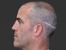 「毛发种植」疤痕植发术前术后分别需要注意什么呢