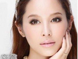 郑州双眼皮修复案例:一个半月就消肿了~