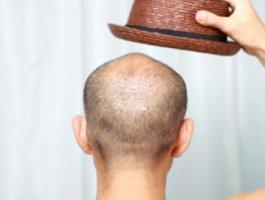 程序员是脱发高发人群?推荐九个治疗男性脱发的中药偏方