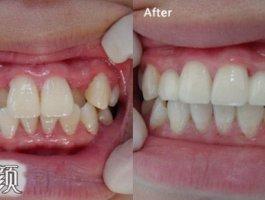 整牙=整容?你的牙齿有这些情况就该整整了