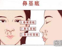 """""""扒一扒""""鼻整形手术绕不开的鼻基底填充"""