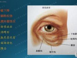 眼袋矫正临床技术全解析