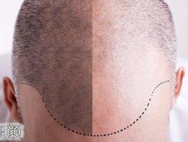 头发稀少,植发靠谱吗?