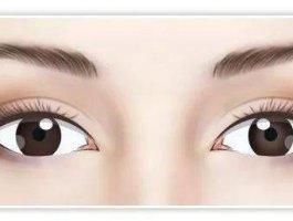 眼修复丨双眼皮改形态之眼头内折、外折可以通过修复改善吗?