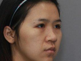 美女在杭州薇琳温科磊医生隆鼻效果附图分享