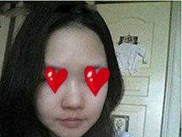 大连微美整形医院韩式misko隆鼻 让我拥有秀美挺鼻