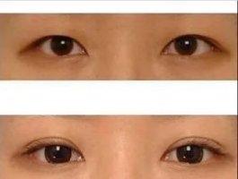 科普|双眼皮术后五大阶段,你要知道