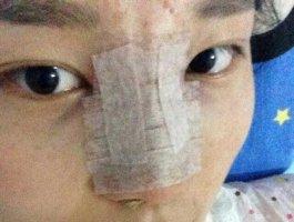 哈尔滨艺星整形医院做的隆鼻 鼻子挺了美了