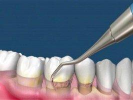 洗牙是自费还是医保卡 洗牙价格是多少钱