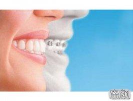 牙齿矫正值得做吗?分析牙齿矫正的利与弊