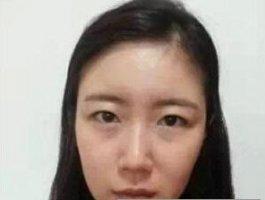 双眼皮+隆鼻+自体脂肪填充 成功变身韩剧女主