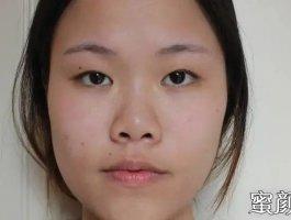重庆华美颌面整形科双眼皮手术案例分享与效果对比图