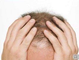 人家植发6个月有初步效果,我着急,你家能帮我4个月有植发效果吗?