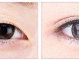 眼部整形医生带你详细了解切开法重睑术