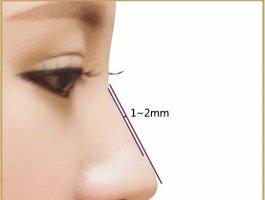 教你怎么选择假体隆鼻最好的医院!