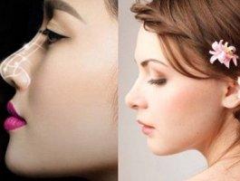 假体隆鼻材料品牌有哪些 上海清杨整形医院隆鼻好吗