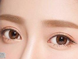 上海鹏爱医院通过案例为你介绍双眼皮术