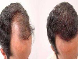 掉头发严重是什么原因 做头发种植需要注意什么